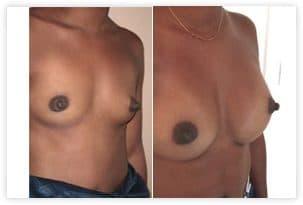 Resultat opération des seins tubéreux de grade I par prothèses mammaires seules (absence de plastie)