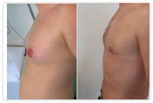 Resultat de correction de gynecomastie associée à une liposuccion abdominale