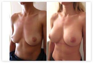 Resultat d'une pose d'implants ronds de 360cc en arrière du muscle en Dual Plan