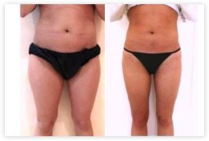 Résultat de correction du ventre et des cuisses