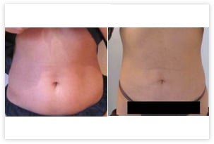 Résultat de liposuccion du ventre et de la taille chez une femme