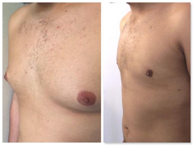 Résultat d'une opération de gynécomastie chez un homme