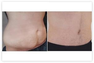 Résultat d'abdominoplastie complete c'est à dire avec transposition ombilicale chez un homme