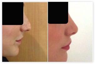 Résultat du retrait de la bosse aboutissant à un nez plus féminin