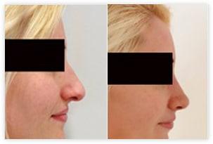 Rhinoplastie ou chirurgie esthetique du nez