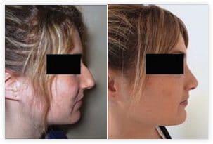 La rhinoplastie a permis de traiter la trop grande projection du nez