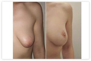 Correction de seins tubéreux avant/après