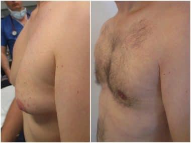 traitement chirurgical de gynecomastie avec adipomastie à cicatrice supérieure