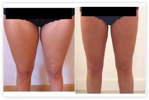 traitement cuisses genoux