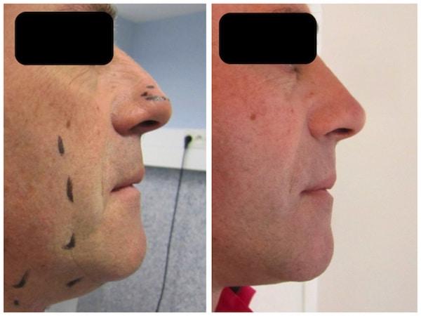 chirurgie esthétique du visage associant lifting et rhinoplastie chez un homme