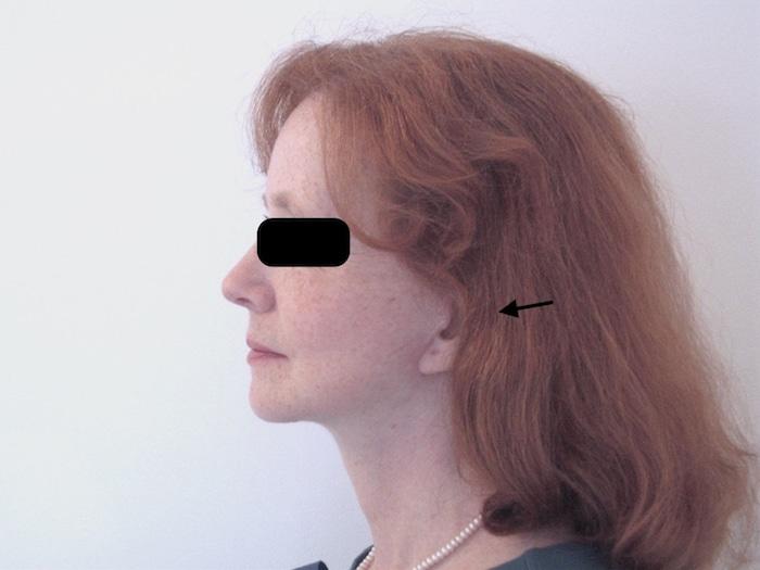 Résultat de lifting à cicatrices courtes et fines