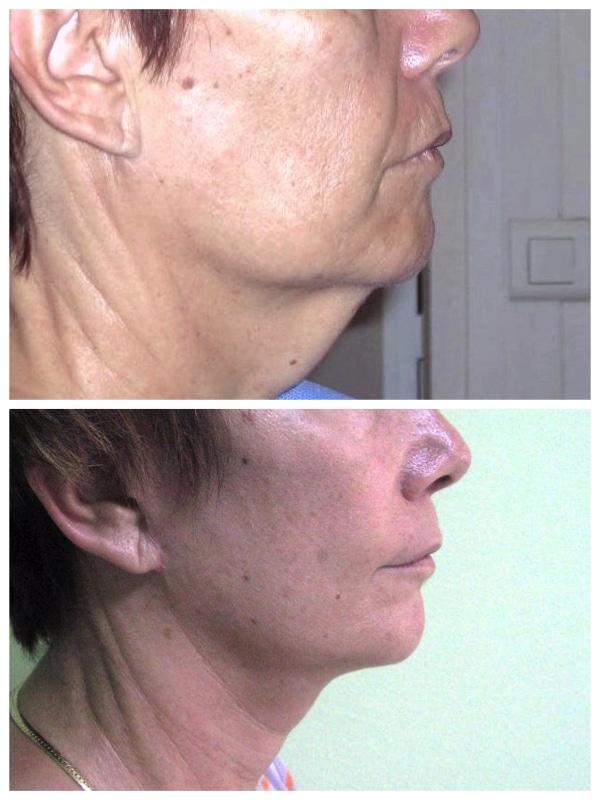 Résultat naturel d'un lifting de l'ovale du bas du visage