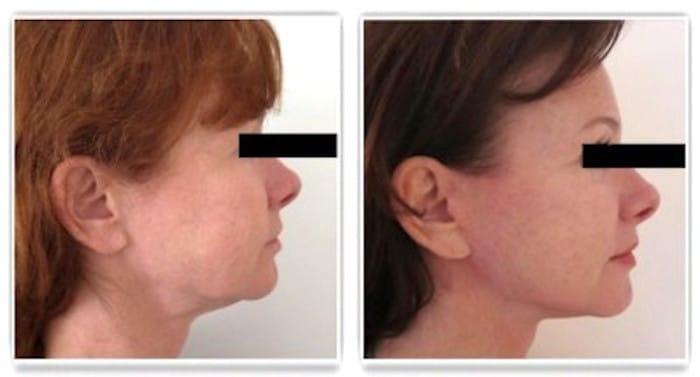 Résultat d'un lifting cervico-facial