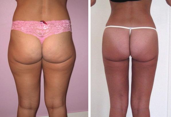 Resultat de liposuccion des cuisses (culotte de cheval et faces internes cuisses) et de la taille chez une femme