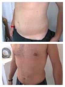 résultat de lipoaspiration chez un homme d'une adipomastie et de la region abdominale