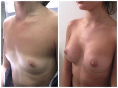 Résultat d'une pose d'implants de 260 cc en dual plan sur agénésie mammaire sévère prise en charge