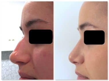 resultat-rhinoplastie-traitant-projection-bosse