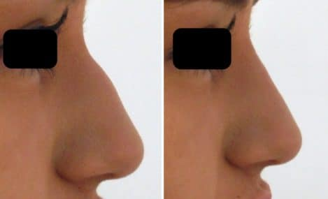 rhinoplastie médicale sans operation