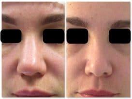 Resultat-rhinoplastie-de-face