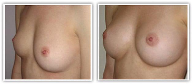 Résultat d'implants mammaire de la taille de 300cc