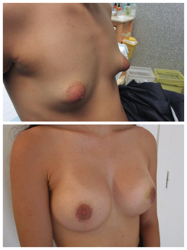seins tubéreux dual plan