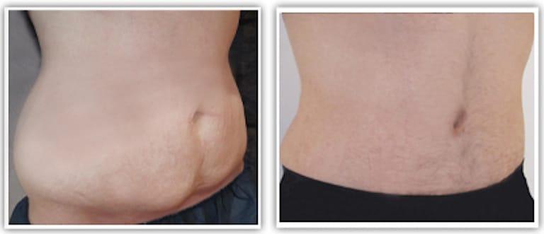 abdominoplastie réparatrice chez un homme après perte de poids