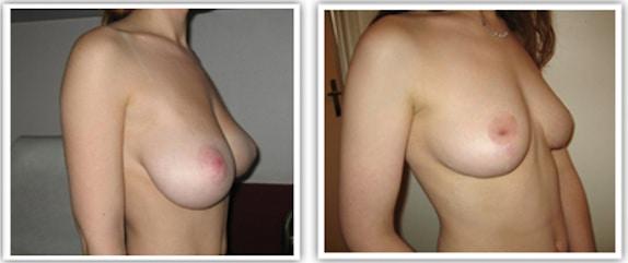Correction de ptose mammaire avec réduction de la taille de la poitrine à cicatrice en t
