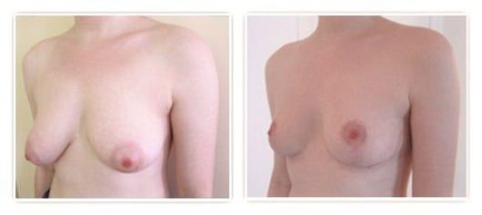 lifting mammaire sans implants à cicatrice en t à 3 semaines