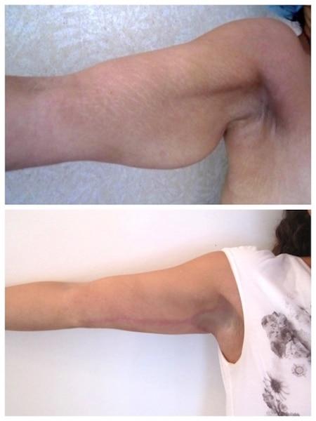 Résultat d'une dermolipectomie de bras