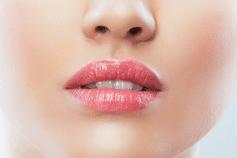 Redessiner les lèvres par l injection d acide hyaluronique 0cc1d675858