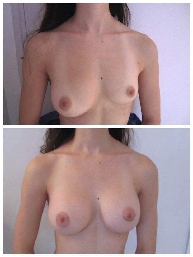 Résultat d'une correction d'asymétrie mammaire par pose d'implants de tailles différentes