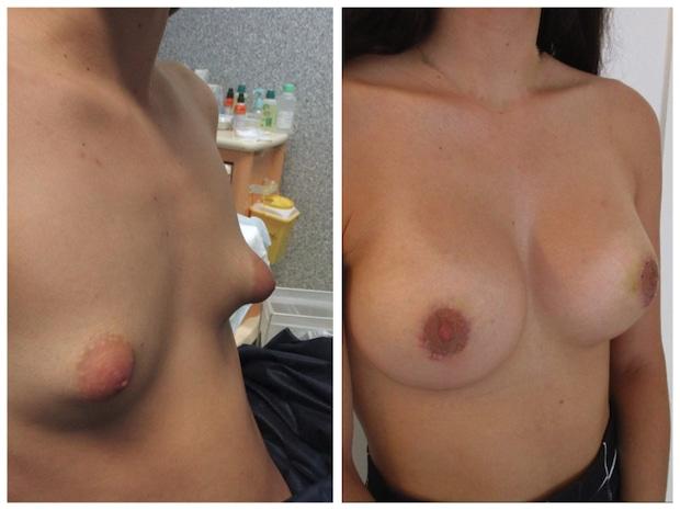 Résultat d'une correction d'une malformation des seins tubéreux par plastie avec implants