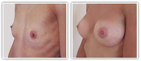Agenesie hypotrophie severe traitée par augmentation par implants