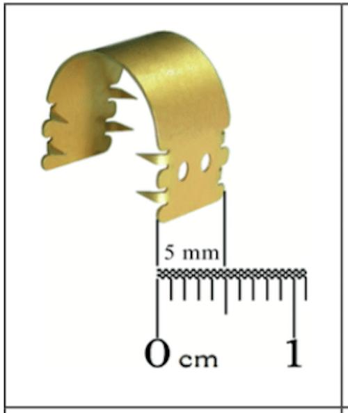 Implant-Earfold®