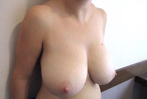 Exemple d'hypertrophie de la poitrine traitée par une réduction mammaire (ici, bonnet E-F)
