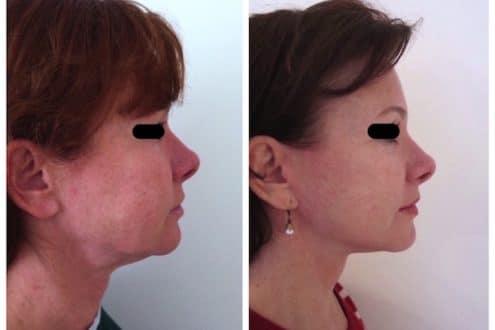 lifting cervico-facial à l'age de 50ans