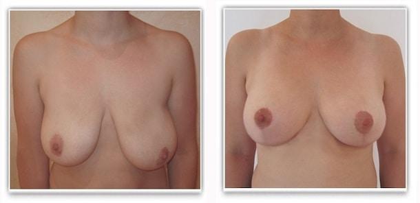 Autre résultat de correction d'asymétrie: reduction mammaire gauche avec plastie mammaire de symétrisation droite