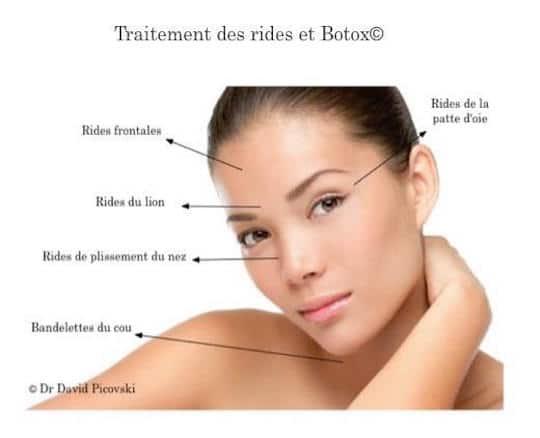Les zones traitées par le botox