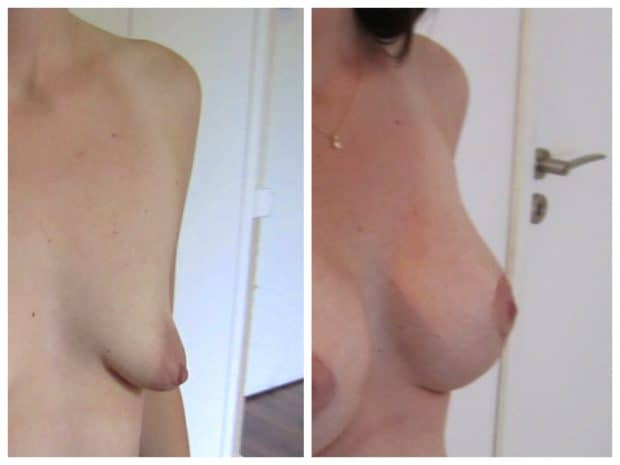 resultat-augmentation-significative-protheses-pour-malformation