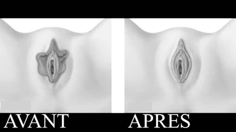 nymphoplastie traitement de l'hypertrophie des petites levres