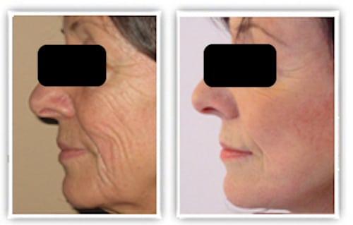 lifting cervico-facial chez une femme de plus de 65 ans