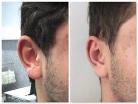 Autre résultat avant-après d'un recollement des oreilles avec lobes