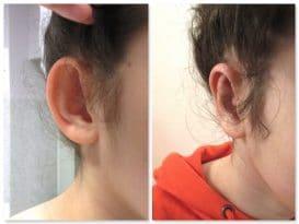 Résultat d'une opération des oreilles décollées chez un enfant