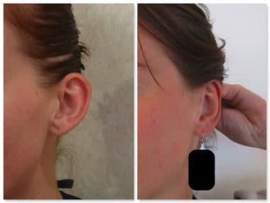 Recollement des oreilles par otoplastie