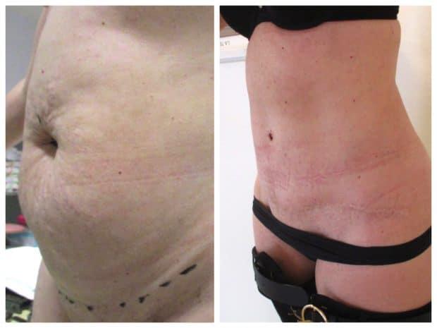 Avant-après: photos du résultat d'une abdominoplastie avec lipoaspiration ventre