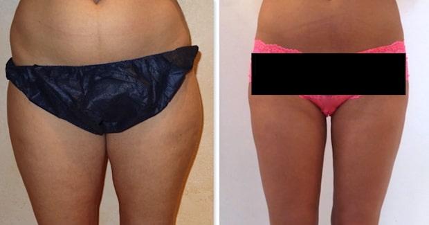 La lipoaspiration a pour but de traiter les graisses résistantes au niveau des cuisses après un régime bien conduit