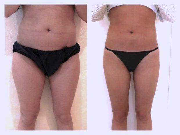 Résulat d'une liposuccion circulaires des cuisses associée à une lipoaspiration des hanches