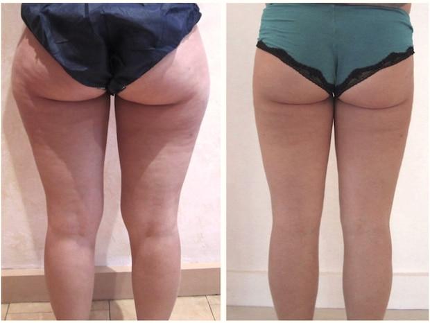 Résultat avant-après d'une liposuccion des la culotte de cheval, des cuisses et des genoux