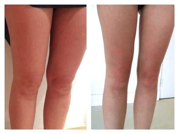 Résultat d'une lipoaspiration diffuse des genoux avec un traitement des mollets