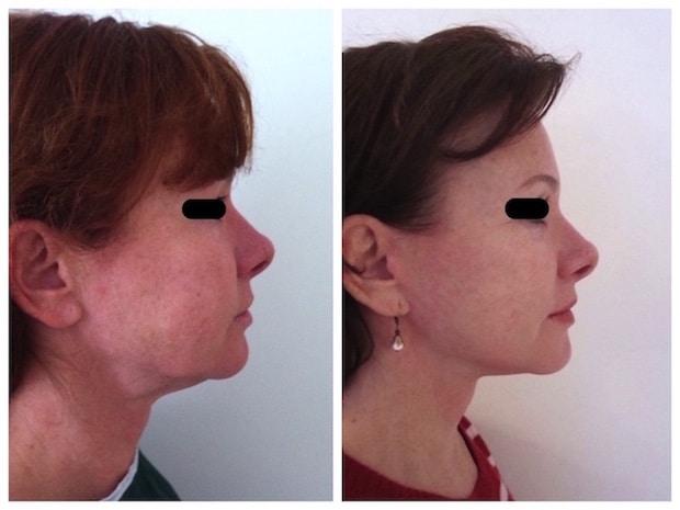 Lipoaspiration du cou combinée à un lifting cervical chez une femme